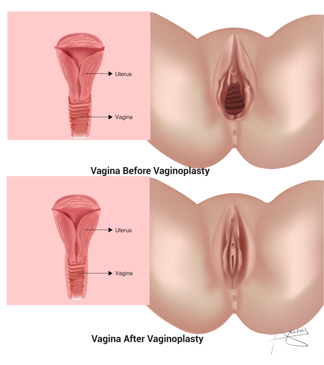 Wants To Bring Back Or Tighten You're Vagina In Natural Ways